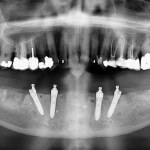Patient A. Lower teeth have been removed and four implants placed