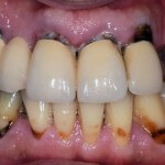 Patient C. This patient has painful, deteriorated and missing upper teeth